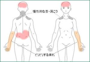 症例報告「左肘から小指にかけての痺れ 」